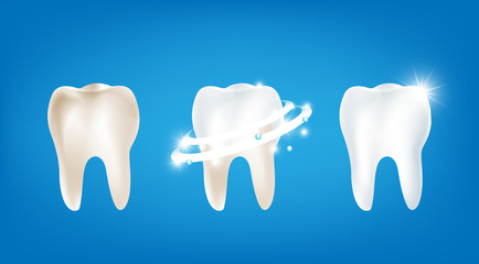 Collection of dirty clean and strong  white tooth wiht glittering bright light element on blue background