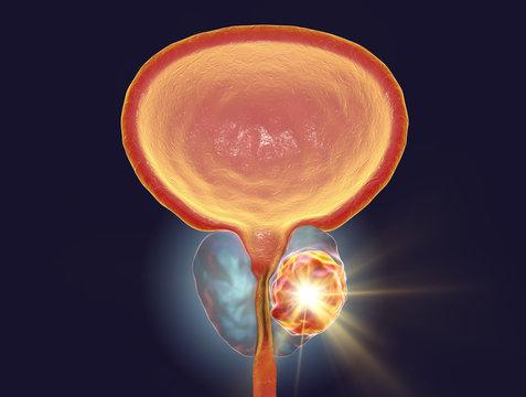 Conceptual image for prostate cancer treatment, 3D illustration showing destruction of a tumor inside prostate gland
