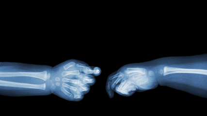 Baby 's hands x-ray and blank area at upper side . ( Shake hands ) . Isolated