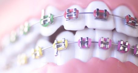 Cosmetic dental metal brackets