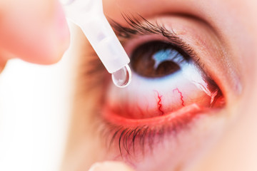 Closeup Of young girl applying eyedrops on inflamed or conjunctivitis eye