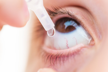 Closeup Of young girl applying eyedrops on the eye