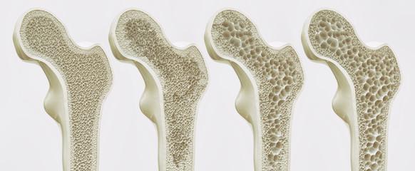 4 Stadien der Osteoporose