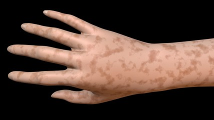 Hand skin age spots dark surface color. 3d rendering