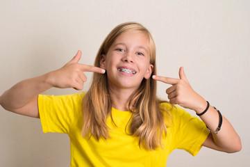 Happy teen girl in yellow t-shirt showing her dental brace.