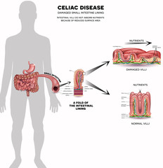 Celiac disease- Damaged cells by body's reaction to gluten. Intestinal villi do not absorb nutrients because of reduced surface area. Healthy villi and unhealthy villi on white