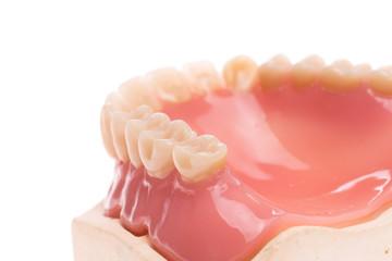 Zahnprothese, Zahngesundheit, Zahnhygiene