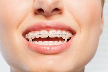 Female mouth with orthodontic elastics on braces