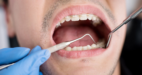 Macro shot of white teeth with braces. Dentist holding probe and mirror and checking up teeth with brackets at the dental office. Orthodontic Treatment.