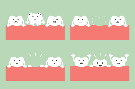 step of caries to first teeth