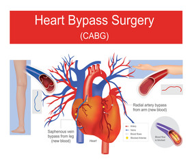 Heart bypass surgery.