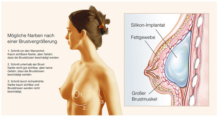 Mögliche Narben nach Brustvergrößerung
