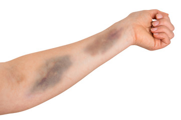 Large bruise on human arm Wall mural