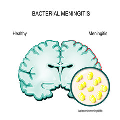 Meningitis. Human brain and meningococcal bacteria.