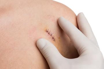Medic or nurse hands examining fresh suture on woman shoulder