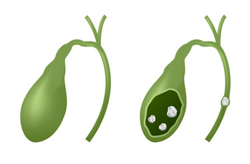 gallbladder and gallstones vector graphic