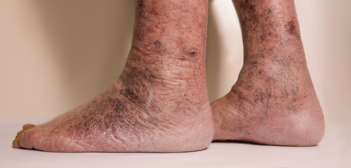 Close-up of skin with varicose veins