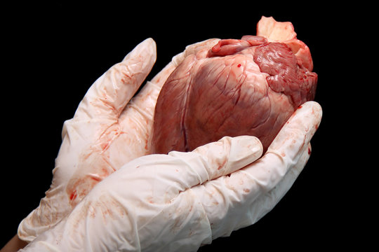 abstract organ transplantation. A human heart in woman's hand. Saving lives hopelessly sick. Complex surgical operations. International crime. Assassins in white coats. isolated on black background
