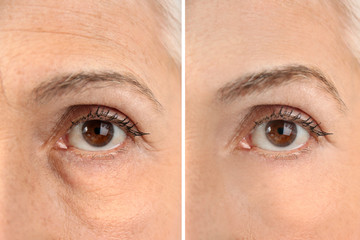 Mature woman before and after biorevitalization procedure, closeup