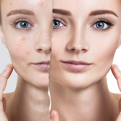 Compare of old photo with acne and healthy skin.