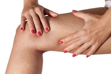 Stretch marks on woman leg