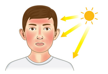 Ultraviolet ray from sun make the redness appear on boy facial and neck skin. Illustration about danger of UV.