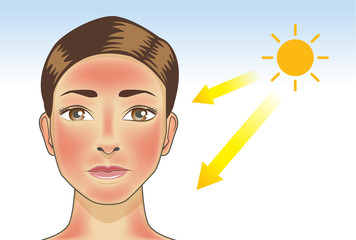 UV ray from sun made the redness appear on woman facial and neck skin. Illustration about danger of Ultraviolet.