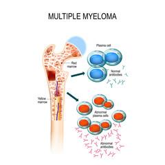 Multiple myeloma. plasma cell myeloma