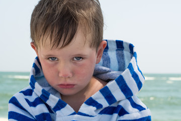 Little cute kid hurt and pouted, disappointed. Beautiful little kid with atopic dermatitis on the background of the sea