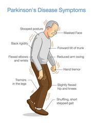 Parkinson's Disease Symptoms. Illustration about health problem of elderly people.
