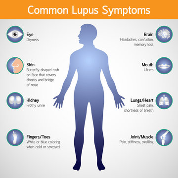 common lupus symptoms vector logo icon illustration
