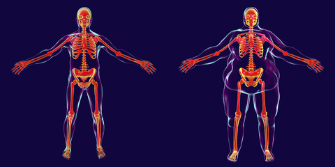 Obesity problem conceptual image, 3D illustration showing normal wieght man and normal skeleton inside obese male body