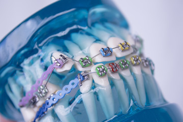 Classic dental metal orthodontics with colored hooks