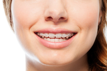 Happy woman's smile with orthodontic clear braces