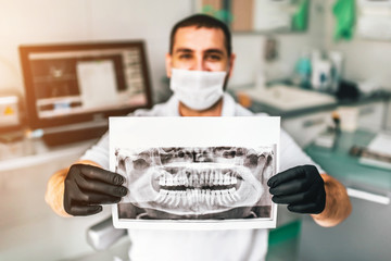 Dentist showing the x-ray of the patient in the dental clinic