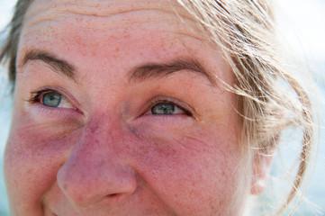 Sonnenbrand im Gesicht