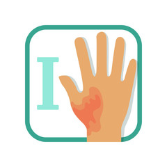 Informative illustration of first-degree burn. Damaged hand with redness, no blisters. Injury concept. Flat vector design for infographic card, brochure or poster