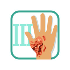 Third degree of burn. Hand with damaged outer (epidermis) and inner (dermis) layer of skin. Severe injury. Flat vector design for medicine book, poster or flyer