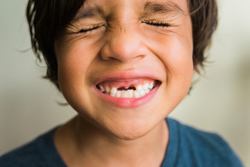 grinning child with gap for missing front teeth