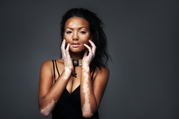 Pretty african girl in the studio with vitiligo disease