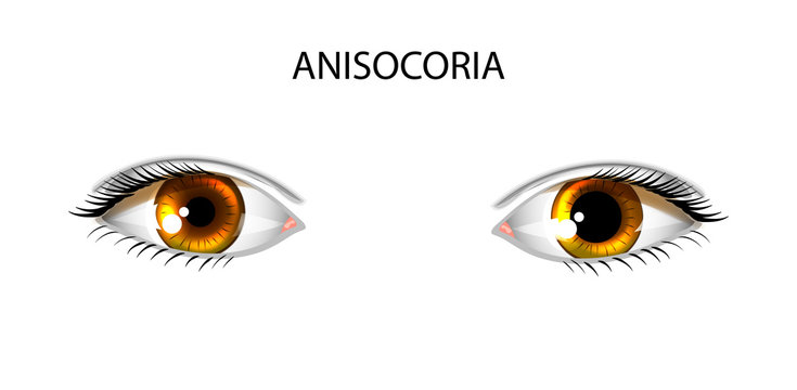 anisocoria. pupils of different sizes