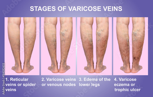 Varicose veins on a female senior legs  The stages of