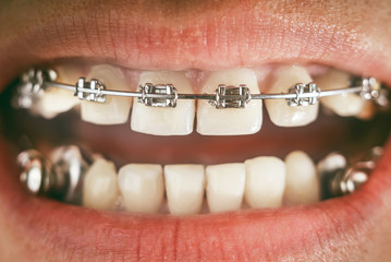 Braces and dental appliance for deep bite
