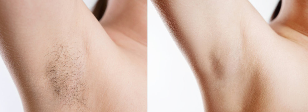 Woman with armpit hair, female hairy armpit, clean woman armpit, before and after shaving