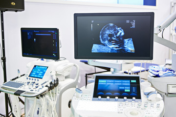Medical devices for ultrasound examination and screen child head