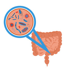 intestinal flora sign