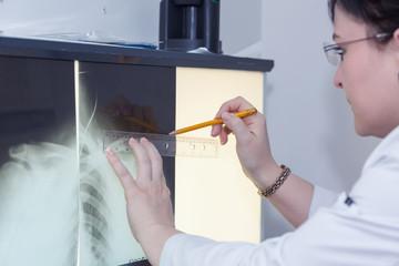 Brunette female doctor examining an x-ray