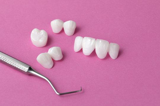 Zircon dentures with dental tool on a pink background - Ceramic veneers - lumineers