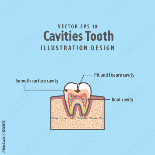 Cavitys Tooth Cross Section Structure Inside Tooth Diagram And Chart