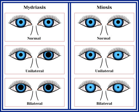 Mydriasis - expansion of a pupil. Miosis - narrowing of a pupil.